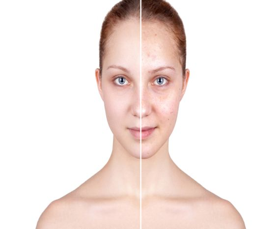 Acne Treatment in Rohini