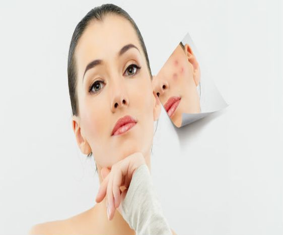 Anti Acne Treatment In Coimbatore