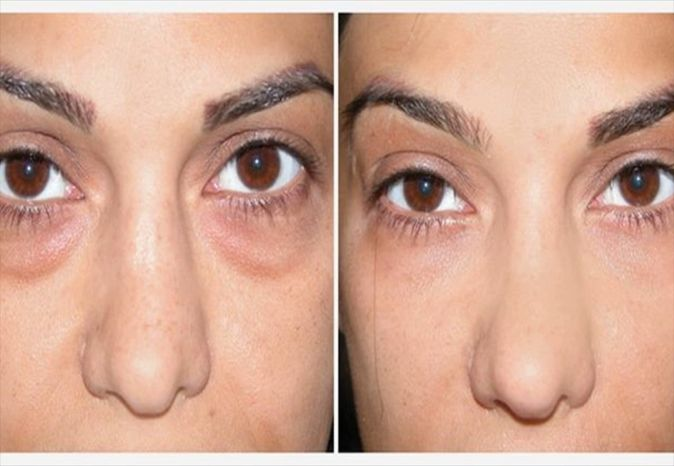 Dark Circles Treatment In Rampur