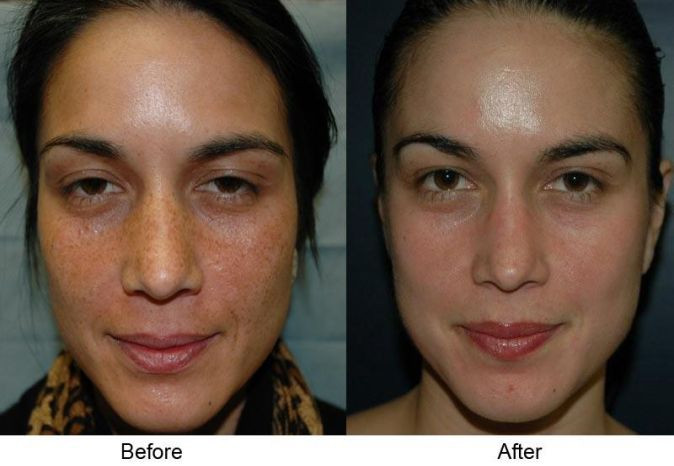 Discoloration Treatment In Coimbatore