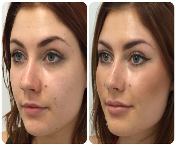 Fillers for Lip Enhancement or Cheeks Augmentation In Pali