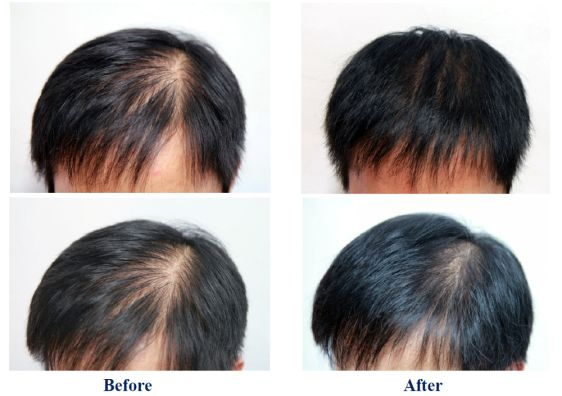 Hair Growth Treatment in Naila Janjgir