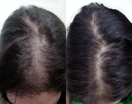 Mesotherapy for Hair Growth and Stop Hair Fall in Naila Janjgir
