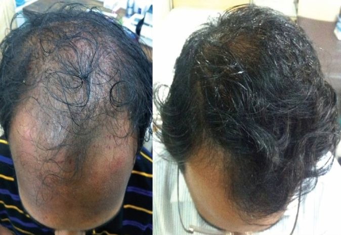 PRP Treatments for Hair Growth and Stop Hair Fall in Naila Janjgir