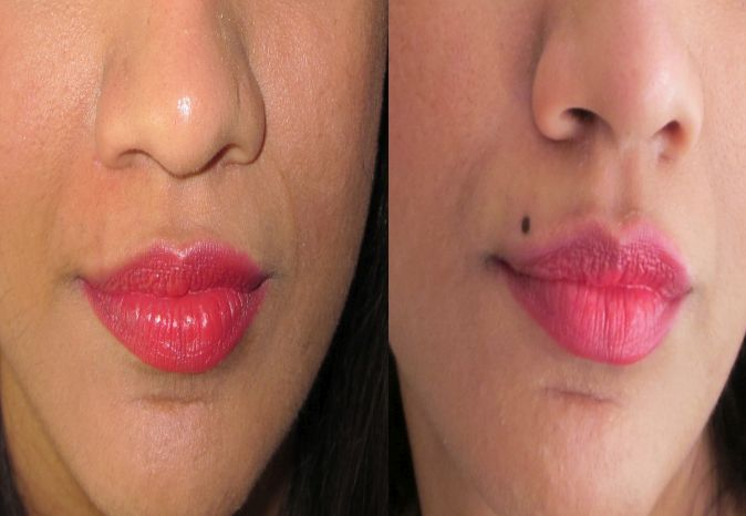 Permanent Mole Creation in Hoshiarpur