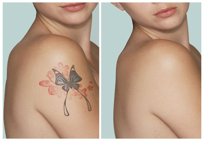 Permanent Tattoo Removal In Dhanbad