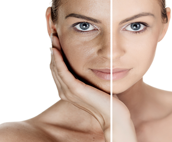 Pigmentation Treatment In Dhanbad