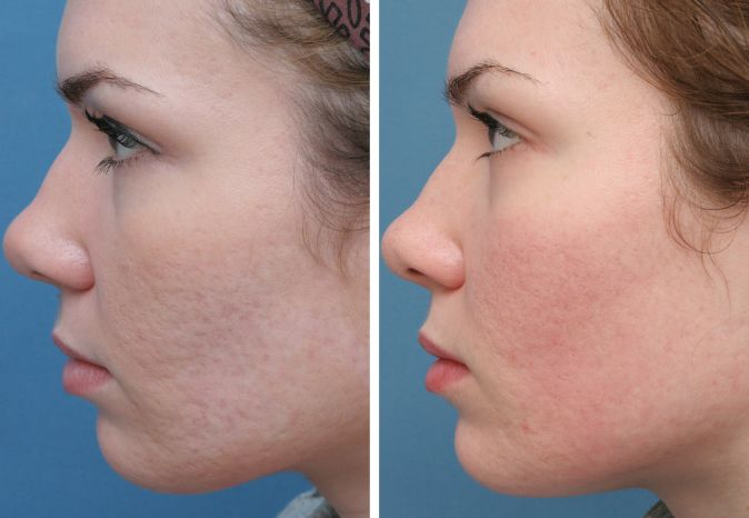 Post Acne Scars Removal in Delhi