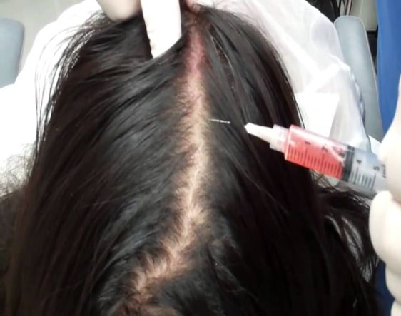 Stem Cell Therapy for Hair Growth and Stop Hair Fall in Naila Janjgir