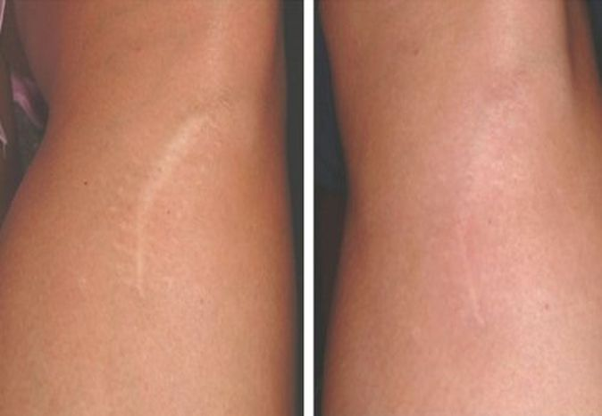 Stretch Marks Control Treatments in Model Town