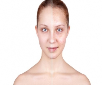 Acne Treatment in Daryaganj