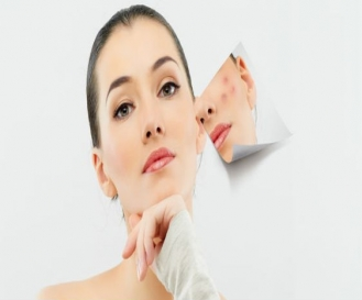 Anti Acne Treatment in Shalimar Bagh