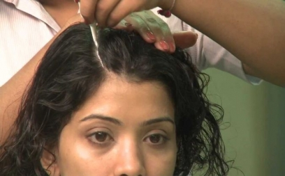 Anti Dandruff Treatment in Naraina