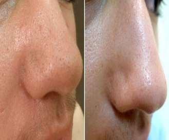 Blackhead treatment in Delhi