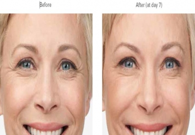 Botox for Wrinkle Removal in Paschim Vihar