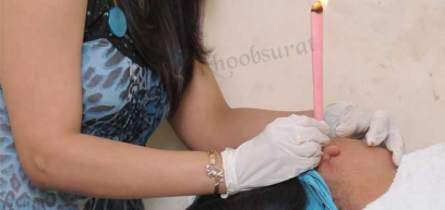 Ear Candling in Fatehpur