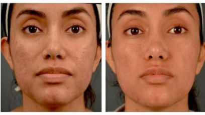Figure Correction through Fractional RF in Beed