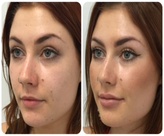 Fillers for Lip Enhancement or Cheeks Augmentation in Model Town