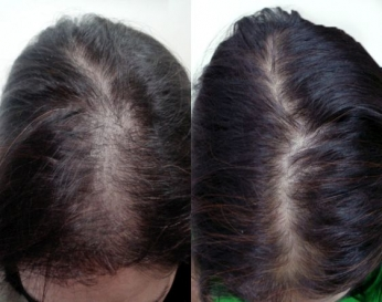 Mesotherapy for hair growth and stop hair fall