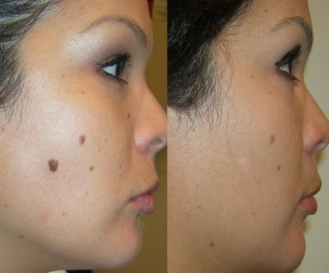 Mole Removal in Indore