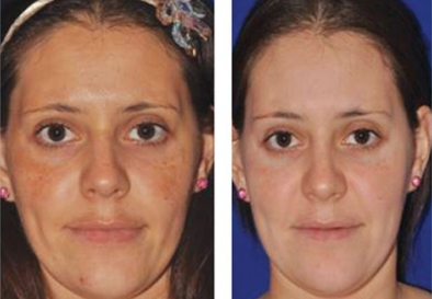 PRP for Facial Glow Skin Tightening Removal of Fine Lines and Wrinkles in Kozhikode