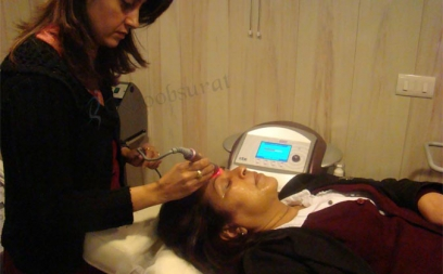 Photo Facial Through IPL in Kohima