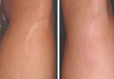Stretch Marks Control Treatments in Harda