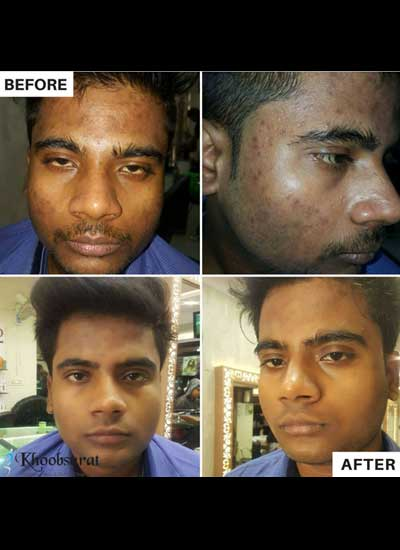 Pimple treatment in Murshidabad
