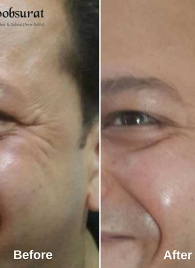 Threads for skin tightening in Model Town