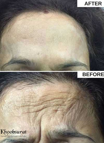 Threads for skin tightening in Panna