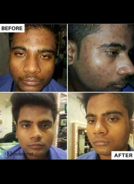 Pimple treatment in Shalimar Bagh